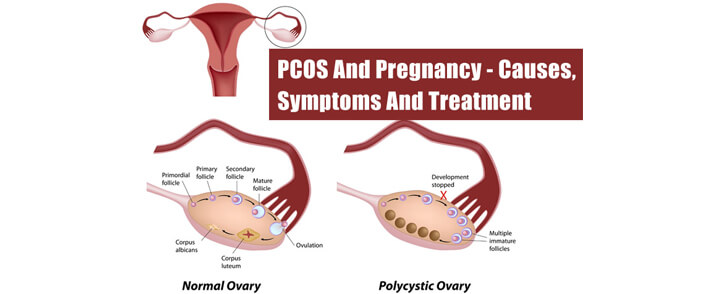 PCOS-PCOD Treatment in Ayurveda